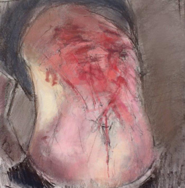 Assad Prison Torture